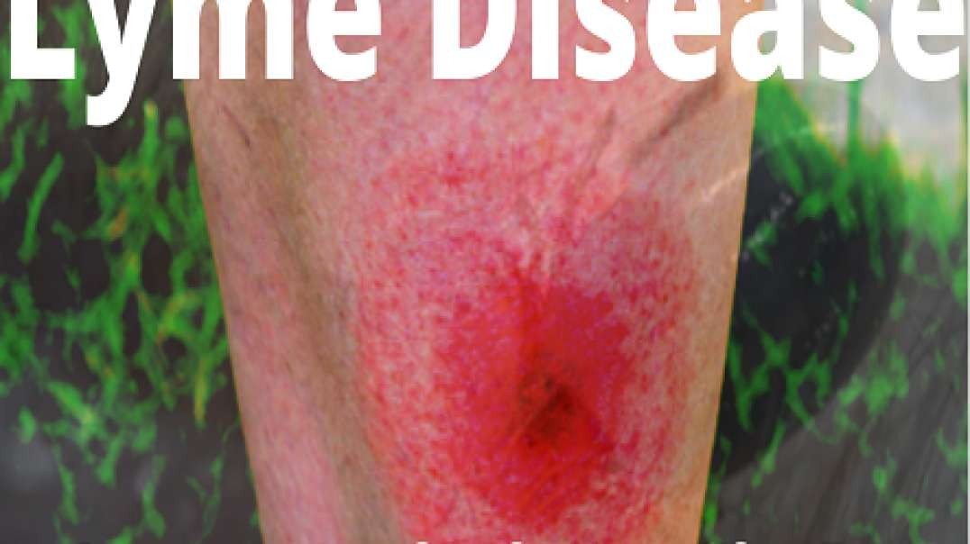Lyme Disease, $100 Million Fight BEWARE!!!